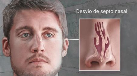 Cirurgia de Desvio de Septo Como é feita, pontos importantes