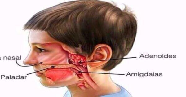 Como é Cirurgia de Adenoide particular e pelo Sus, Como Conseguir